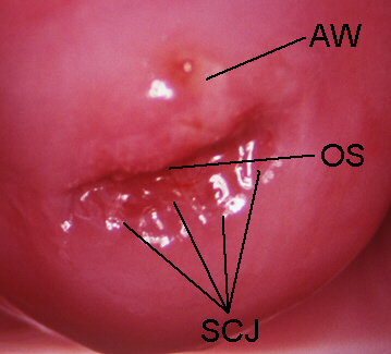 Cervix Anatomy