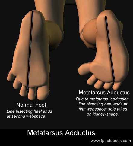 Metatarsus Adductus || Information for the Patient about ...
