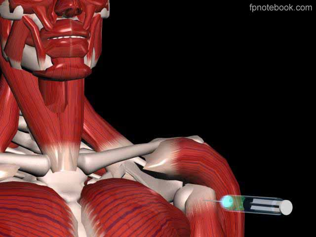 Biceps Tendon Injection