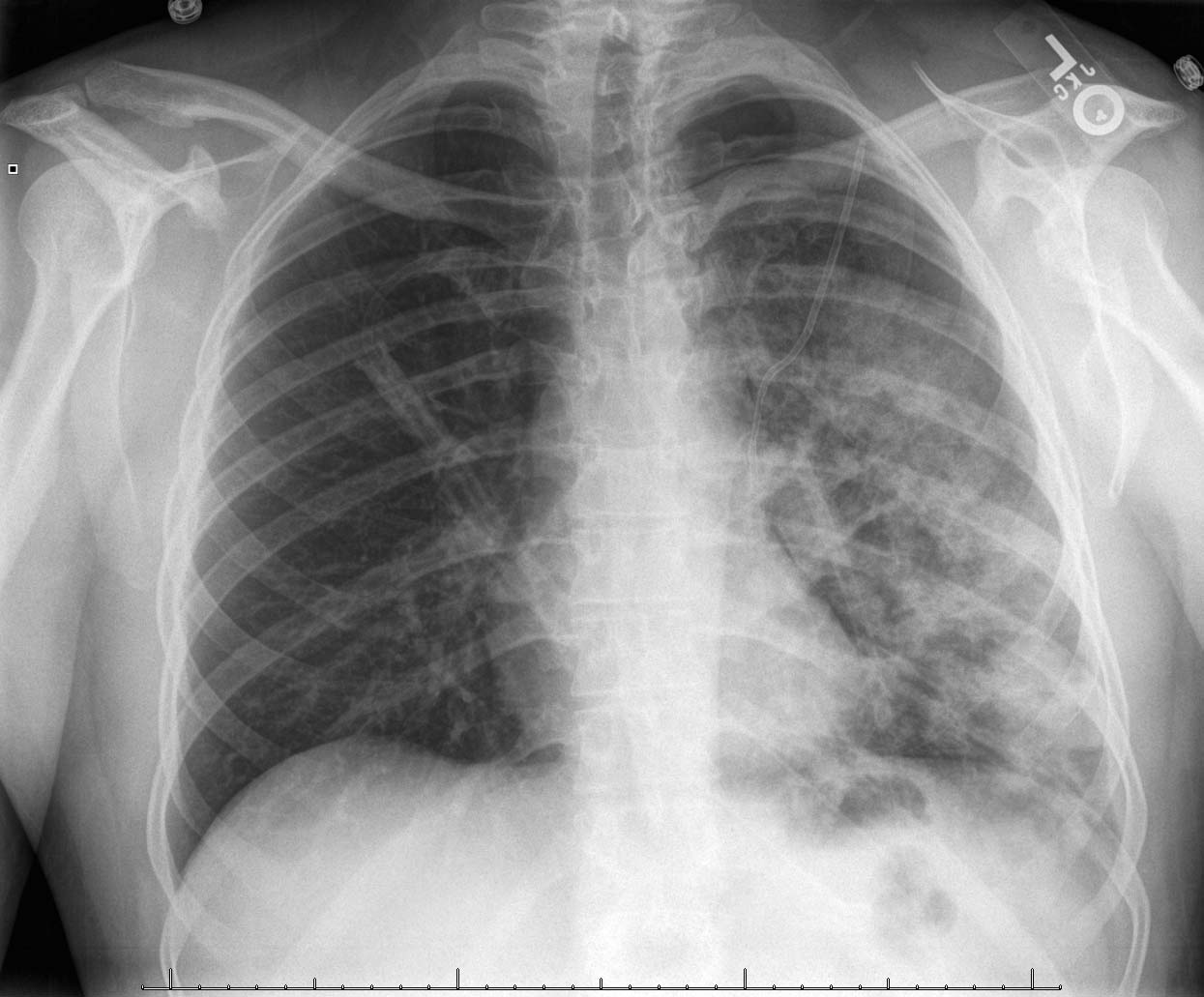 x ray screeners could see x rated x rays