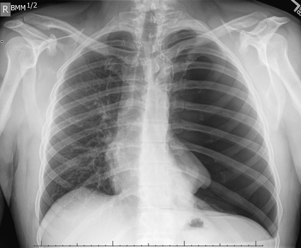 Reexpansion pulmonary edema following Chest Tube placement