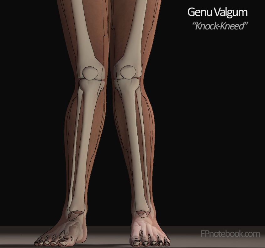 The gallery for --> Q Angle Genu Valgum