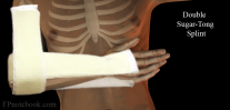 OrthoWristSugarTongDouble.png