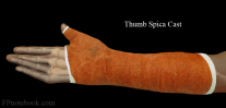 OrthoWristThumbSpicaCast.png